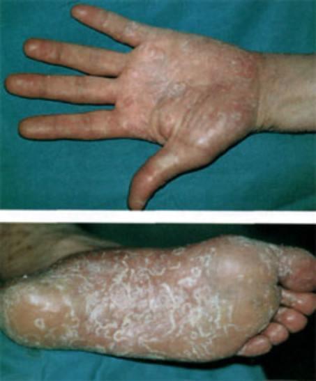 папулезный сифилид ладоней и подошв