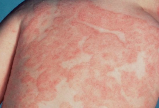 дерматит аллергический у ребенка