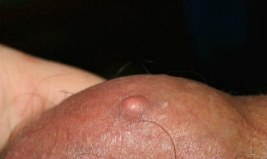 Атерома кожи