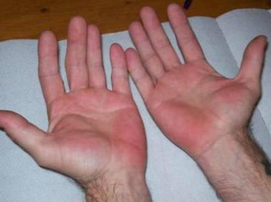 Болезнь Лане на руках