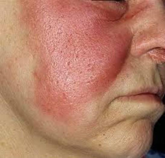 Рожа болезнь на лице