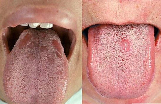 Вторичный сифилис: высыпания во рту