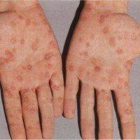 Высыпания на ладонях при вторичном сифилисе