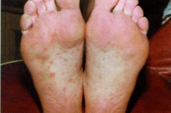 Высыпания на подошвах при вторичном сифилисе