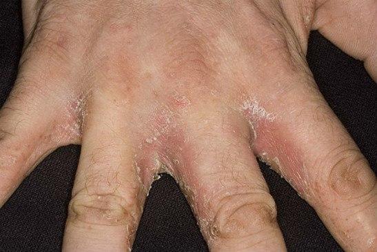 Грибковое поражение между пальцами рук