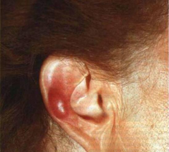 Доброкачественная лимфоцитома кожи, болезнь Лайма