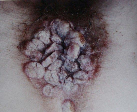 Кондиломы при вторичном сифилисе