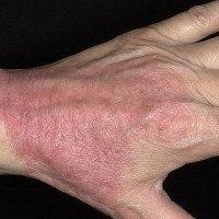 Контактный дерматит на руках