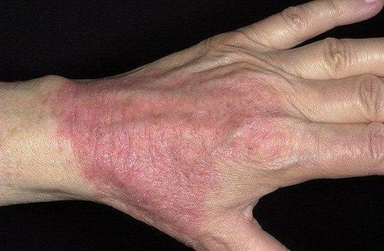 контактный дерматит на руках фото