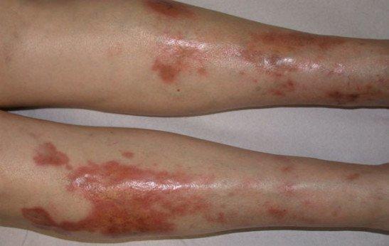 Липоидный некробиоз кожи при сахарном диабете