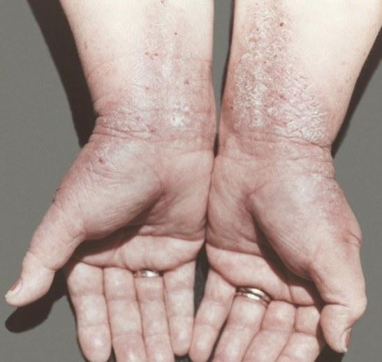 Ограниченный нейродермит на руках