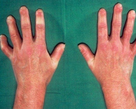 фото отека пальцев при склеродермии