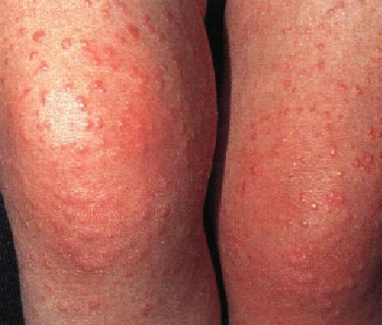 Акродерматит причины и лечение