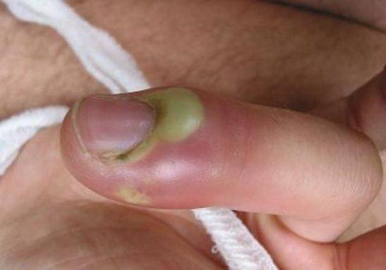 Паронихий пальца на руке, фото