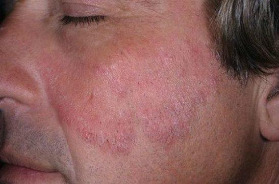 Простой псориаз на лице