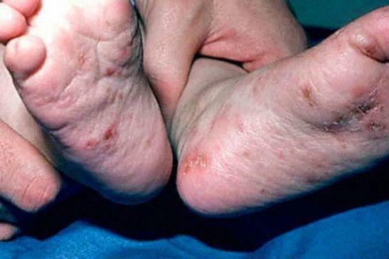 Псевдочесотка на ногах