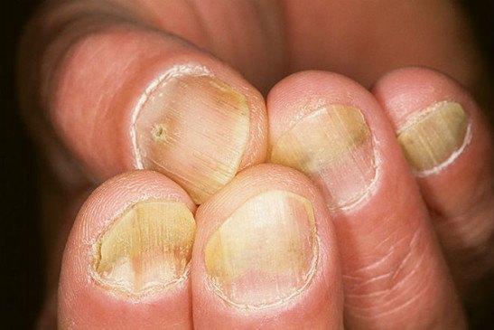 Чем лечить ногти пораженные псориазом