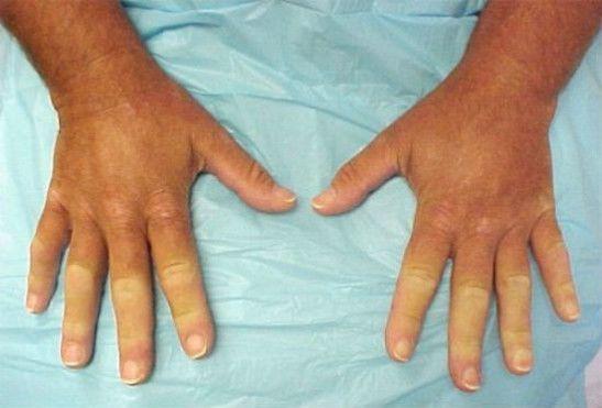 Синдром Рейно при склеродермии