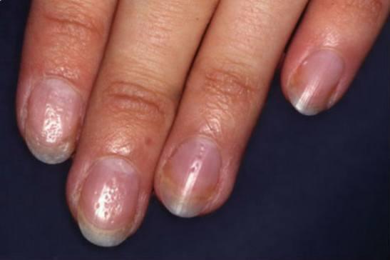 Синдром наперстка при псориазе ногтей