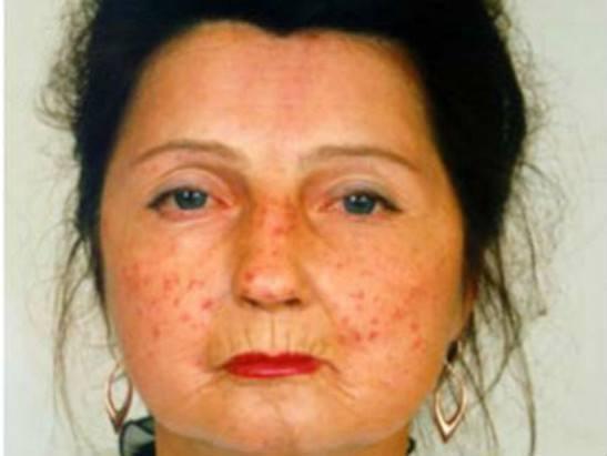системная склеродермия фото поражение лица