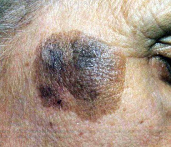 Старческая кератома на лице