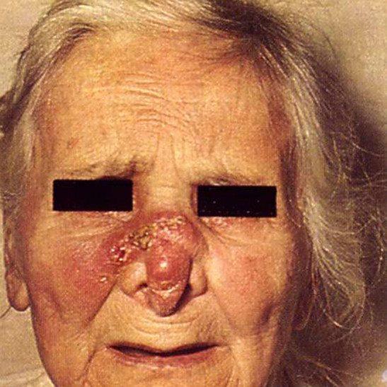 Третичный сифилис, седловидный нос