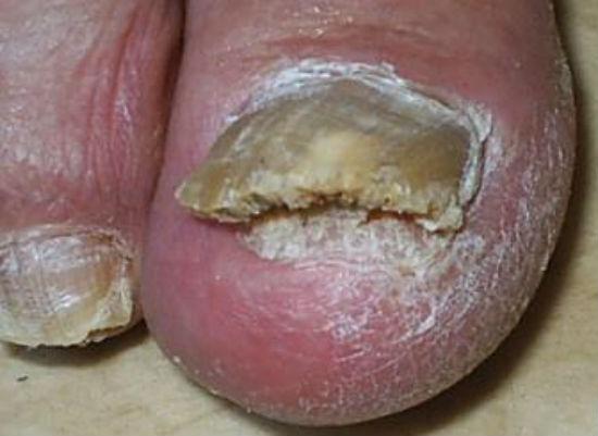 Утолщение ногтя при онихомикозе