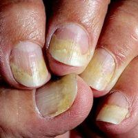 Частичный онихолизис на руках