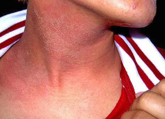 Эритематозно-сквамозная форма атопического дерматита с лихенизацией