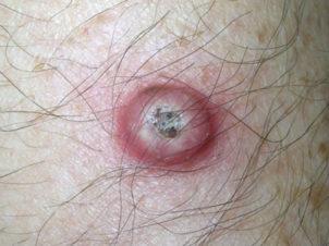 Начальная стадия плоскоклеточного рака кожи