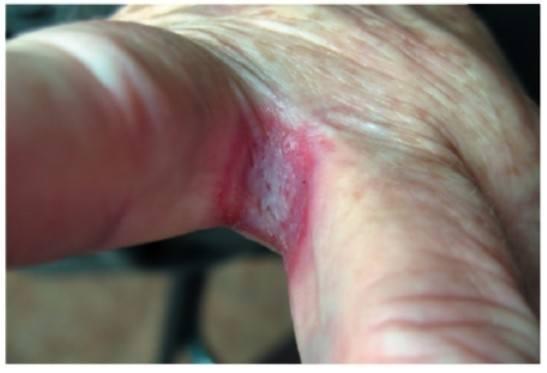 Кандидозные опрелости между пальцами
