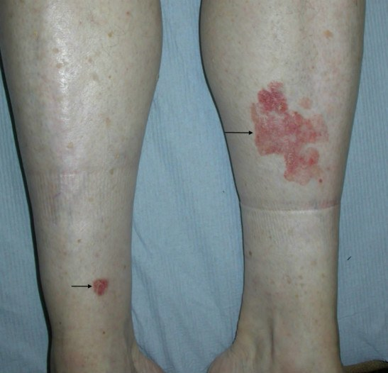 болезнь боуэна фото симптомы и лечение