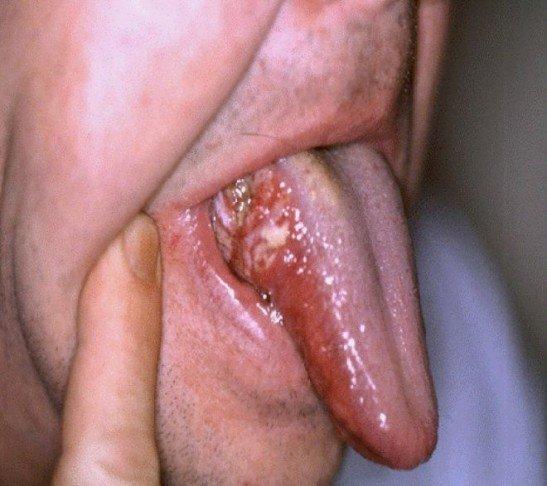 Заболевание Боуэна в полости рта