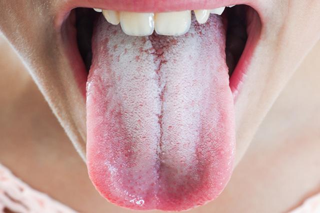 Что провоцирует развитие кандидоза (молочницы) языка и как его вылечить?
