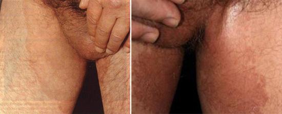 Паховая эпидермофития - симптомы и лечение