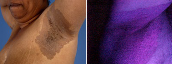 Эритразма: причины, симптомы и лечение в статье венеролога