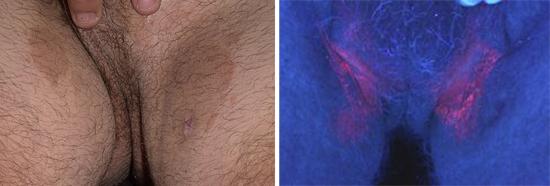 На фото паховая эритразма у мужчин