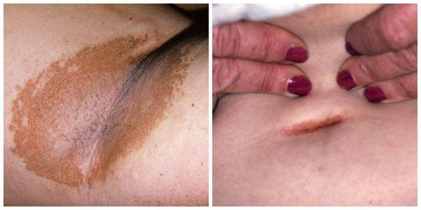 Эритразмы в складках кожи