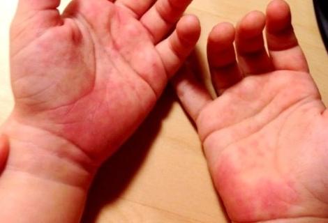 Красные пятна на теле: фото, возможные болезни, лечение
