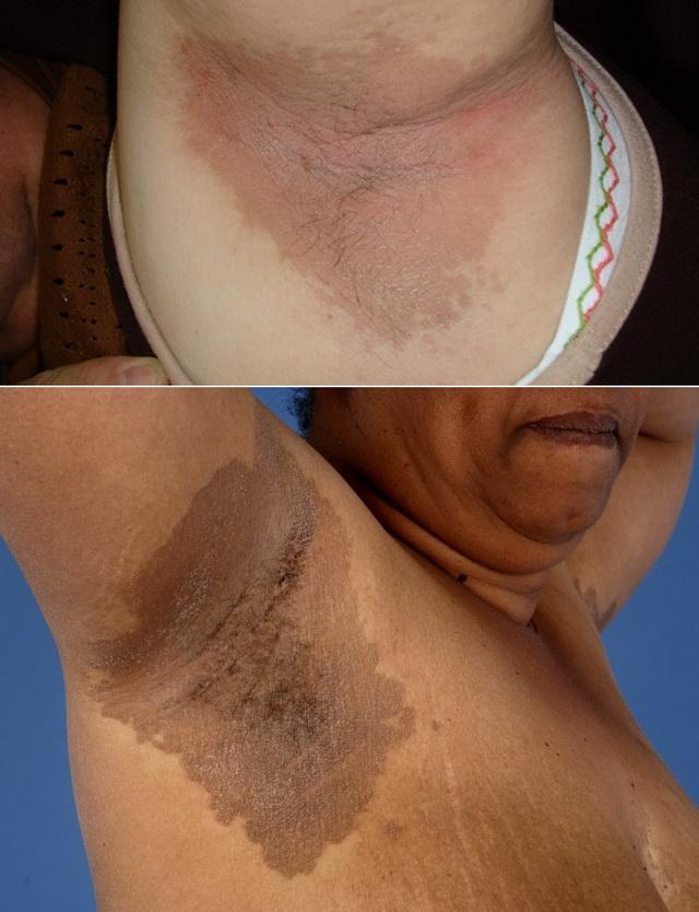 Эритразма поверхностных слоёв кожи под мышками
