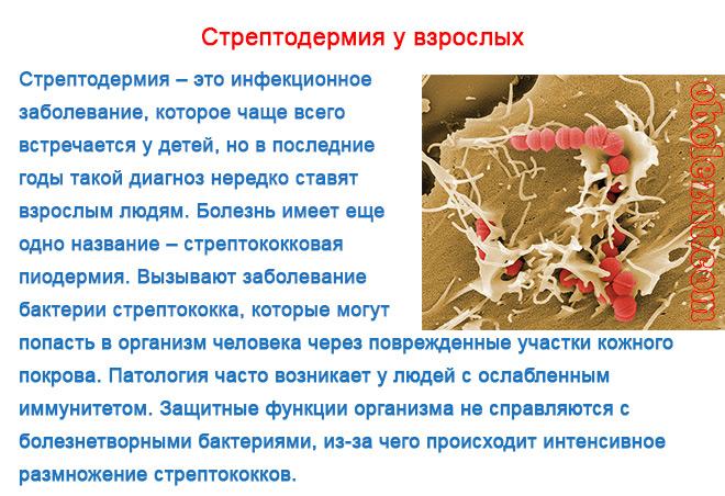 Фото с описанием стрептодермии у взрослых
