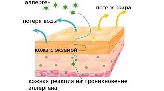 Cимптомы и лечение, инкубационный период. Мази, антибиотики, народные средства
