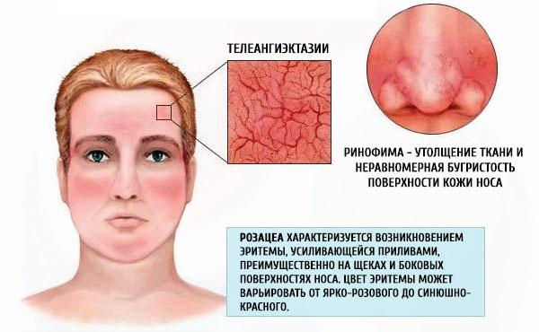 Сухие пятна на коже: шершавые, красные, белые, темные. Фото, причины и лечение у взрослых и детей