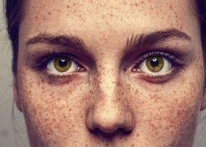 Пятна на коже — различных цветов, размеров и степени беспокойства