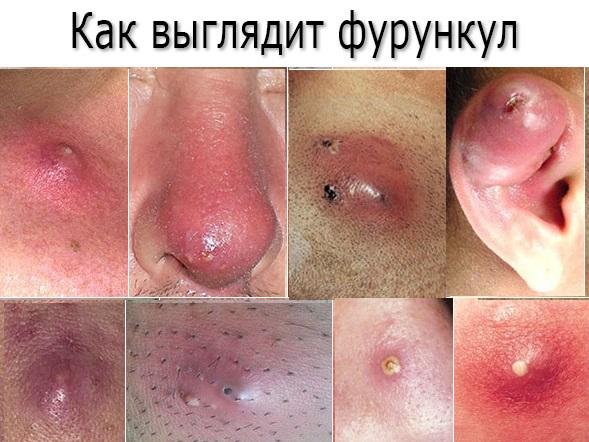 Причины фурункулеза, лечение антибиотиками в домашних условиях и фото