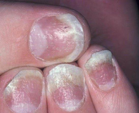 Кандидоз ногтей на руках