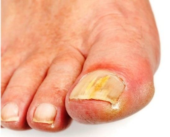 Кандидоз ногтей на ногах