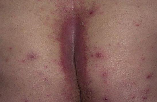 Проявления псориатического артрита суставов разновидности симптомы и терапия