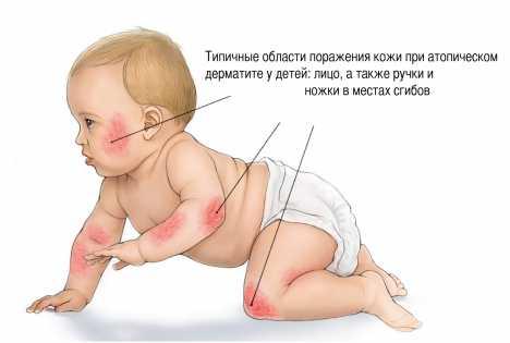 Дерматит фото симптомы и лечение у детей на ногах