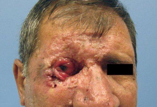 Базалиома 4 стадии с повреждением глазного яблока